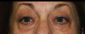 Blepharoplasty Before and After Pictures Pittsburgh, PA