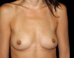 Breast Augmentation Before and After Pictures Pittsburgh, PA