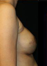 Breast Reconstruction Before and After Pictures Pittsburgh, PA