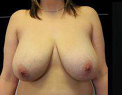 Breast Reduction Before and After Pictures Pittsburgh, PA