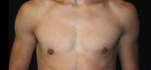 Gynecomastia Before and After Pictures Pittsburgh, PA