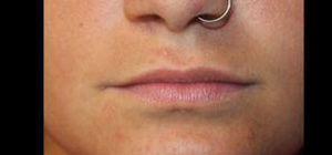 Lip Augmentation Before and After Pictures Pittsburgh, PA