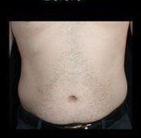 Liposuction Before and After Pictures Pittsburgh, PA