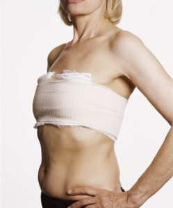 Breast surgery recovery